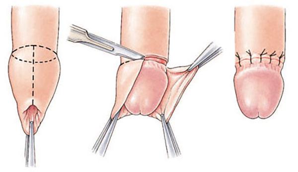 erecție afectată din cauza prostatitei cremă pentru reducerea sensibilității penisului