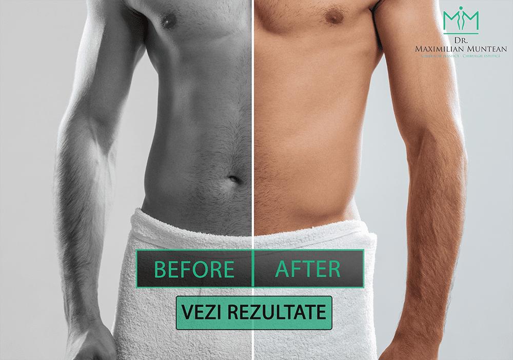 erecție artificială în timpul intervenției chirurgicale erecție proastă la 27 de ani