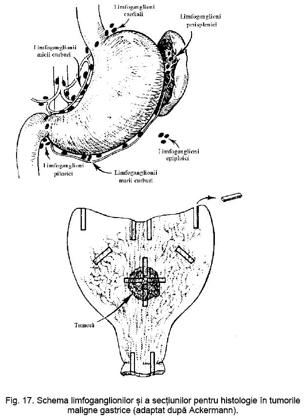 mărirea penisului acasă