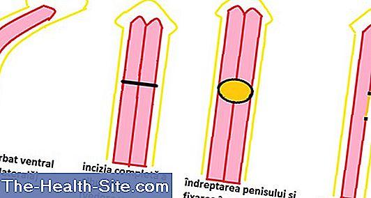 dimensiunea penisului de erecție