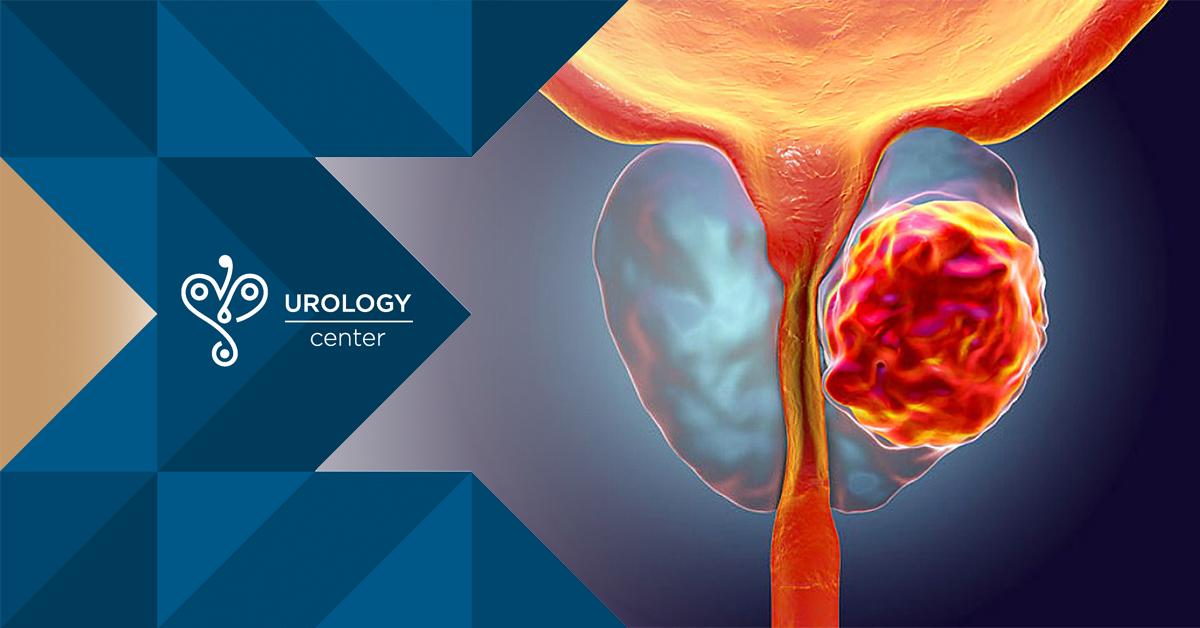 dacă există o erecție atunci nu există prostată erecțiile s  au înrăutățit brusc