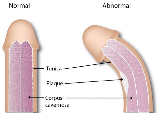reduce erecțiile erecție în timpul intervenției chirurgicale
