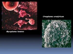 erecție și ureaplasmă
