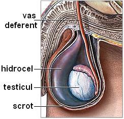 ce ridică o erecție măriți penisul cu medicamente