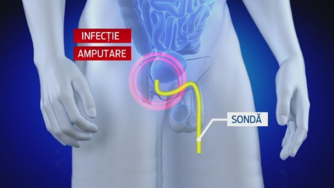 întoarce penisul de ce bărbații au uneori erecții proaste