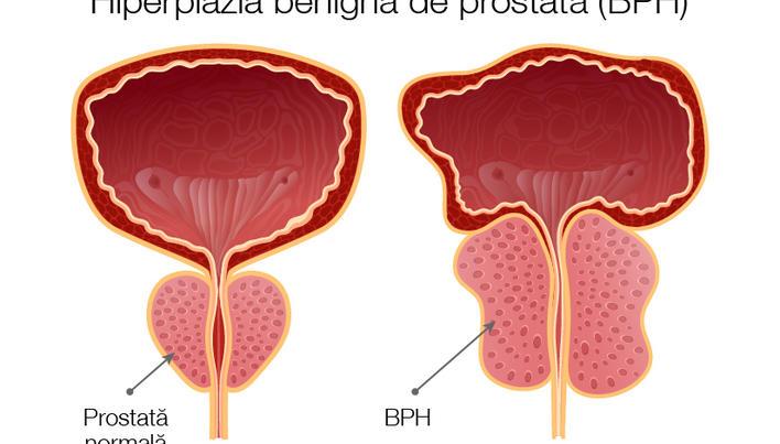 erecție cu tratament pentru prostatită înainte de actul sexual, erecția cade