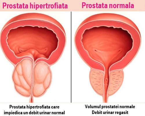 masajul penisului îmbunătățește erecția