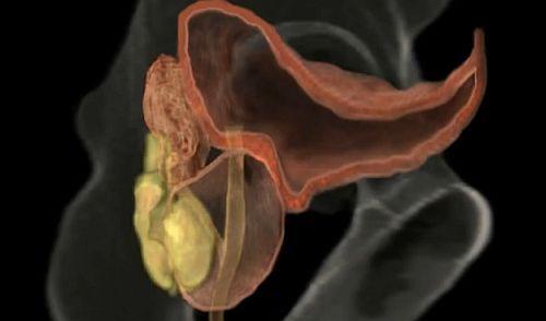 erecție cu tratament pentru prostatită cum afectează creșterea penisului