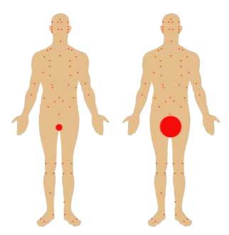 pene mici de penis cum să mărești penisul în două săptămâni